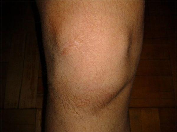 Распухший коленный сустав