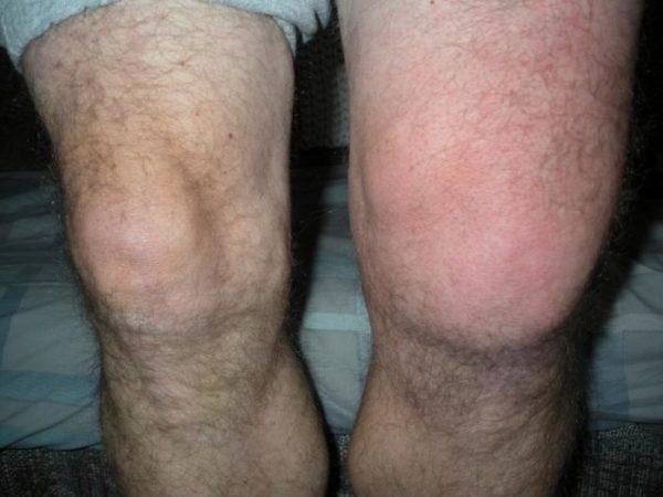 Оттек ноги из-за сильного ушиба