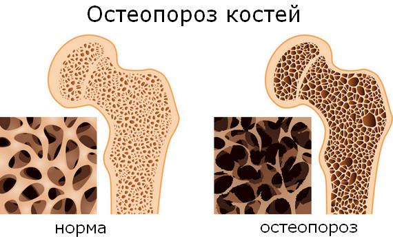 Вид костей в норме и при болезни