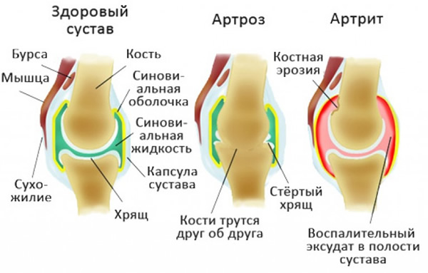 Вид сустава при артрозе и артрите