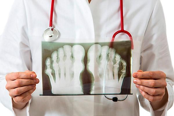 Рентген для диагностики недуга
