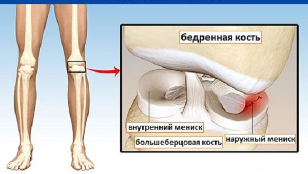 Повреждения наружного хряща