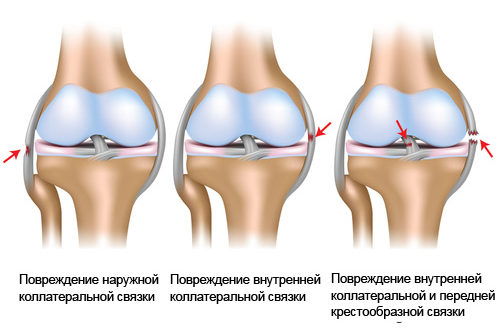 Повреждения коллатеральной связки