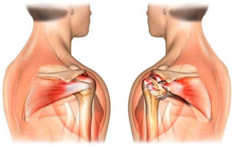Растяжение в плече