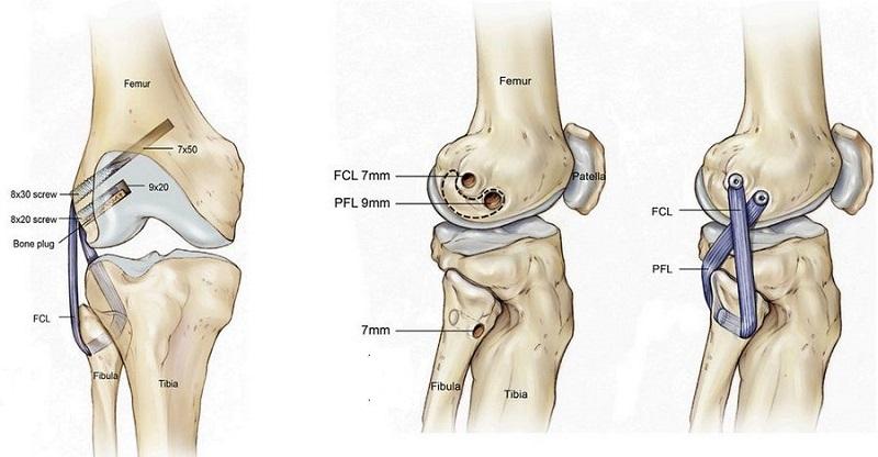 Реконструкция коленного сустава