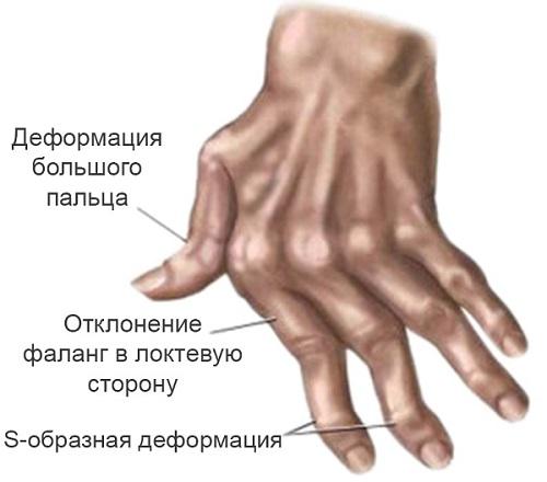 Кисть пораженная болезнью