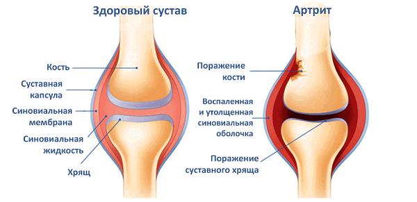 Поражение кости при артрите