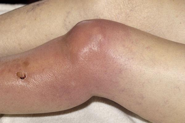 Вид септического артрита