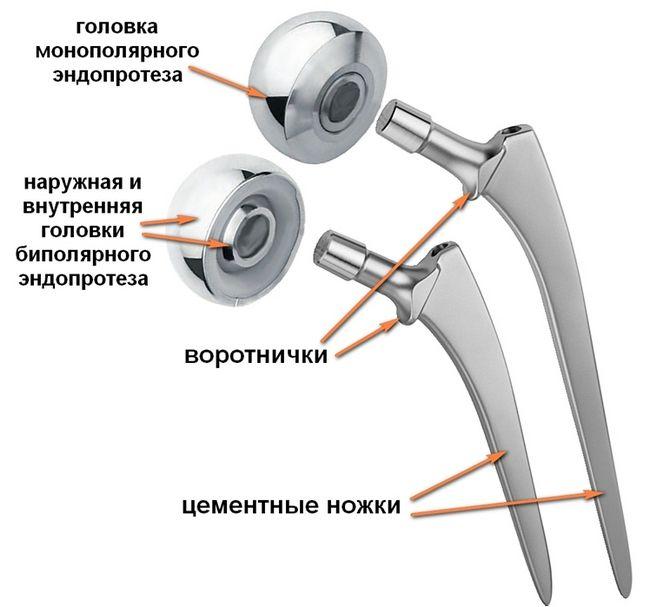 Составляющие эндопротеза и их названия