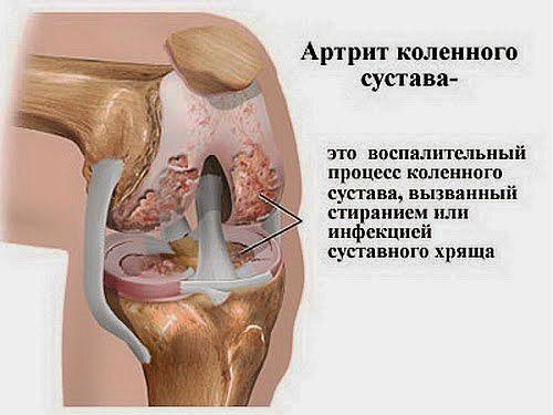 Анатомия воспаленного колена