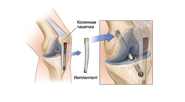 Применение трансплантата в операции