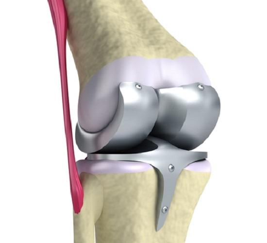 Трансплантация коленного сустава