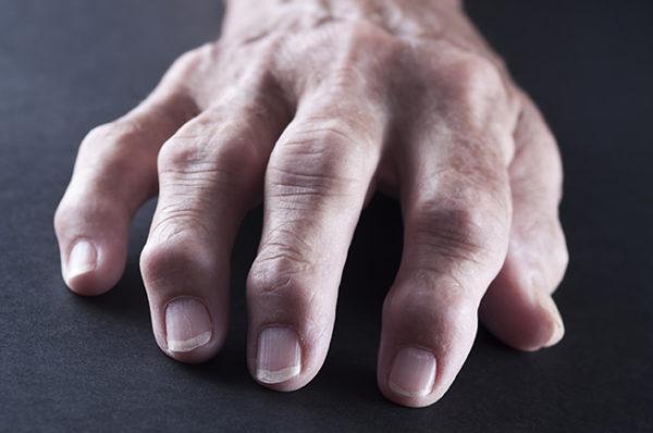 Суставы при артрите
