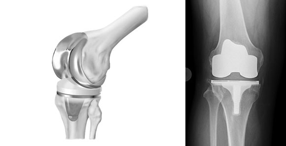 Вид протеза в колене