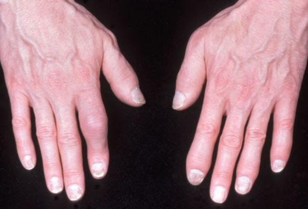 Кисти рук больного артрозом