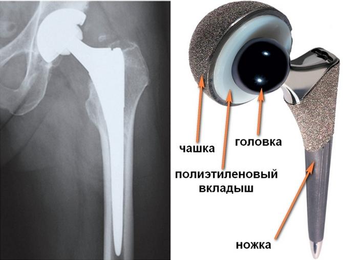 Конструкция протеза для таза