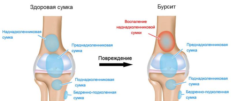 Сравнение здорового и пораженного сустава