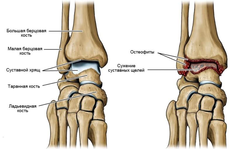 Артроз сустава ноги