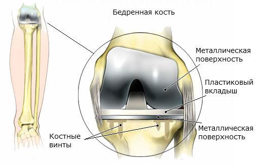 Структура протеза в суставе