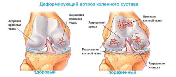 Здоровый и пораженный сустав