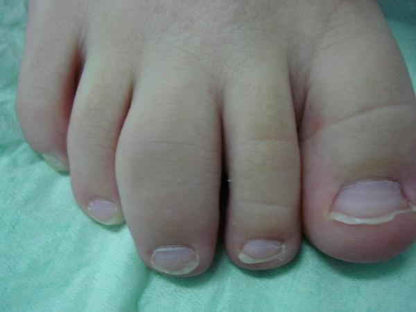 Ножка ребенка пораженная болезнью