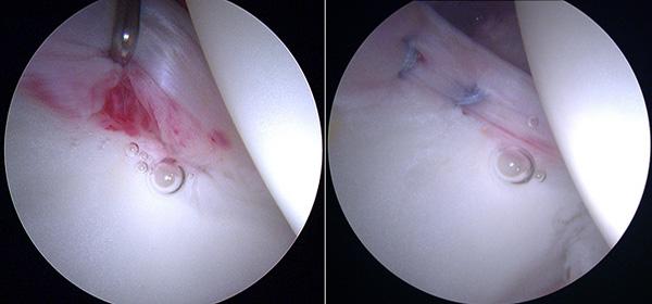 Два небольших шва внутри сустава
