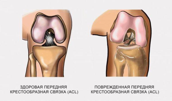 Передняя крестообразная связка