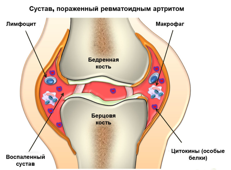 Процесс воспаления