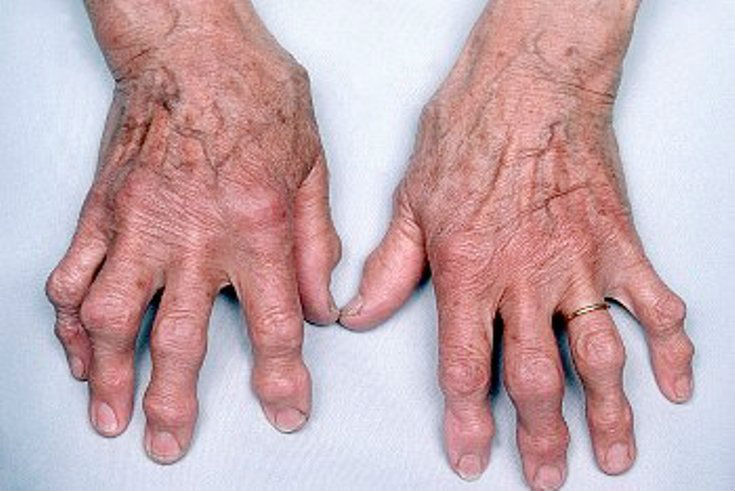 Руки с артрозом