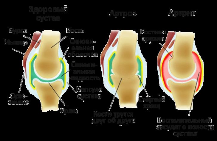 Сравнение здорового сустава и двух болезней