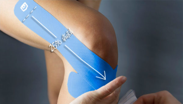Стабилизация коленного сустава