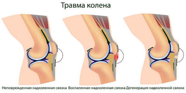 Травмированние коленного сустава