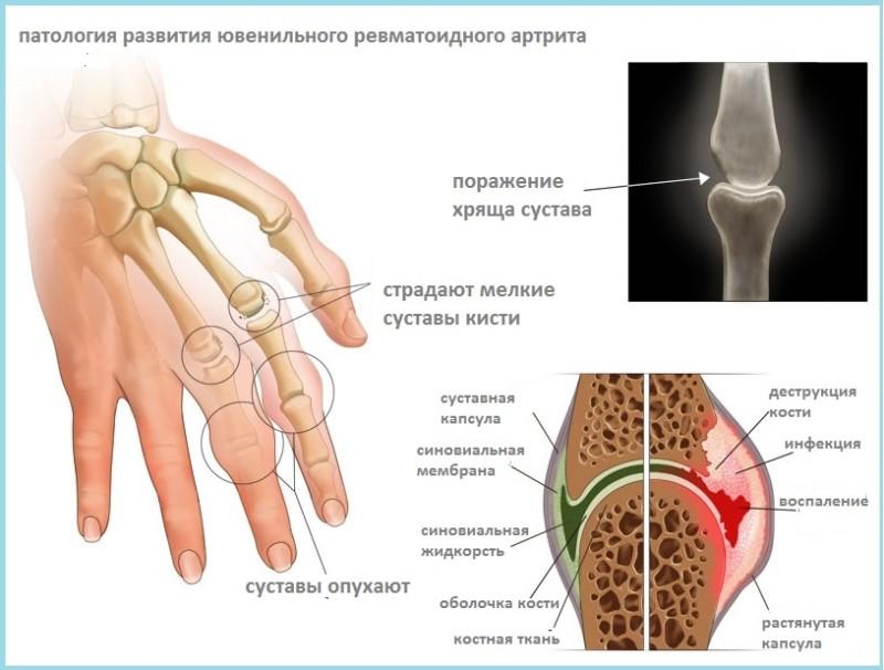 Развитие артрита кисти