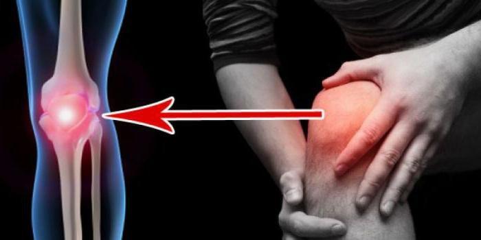 Воспалительный процесс в колене