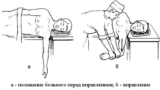 Метод вправления по Джанелидзе
