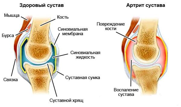 Поражение колена артритом