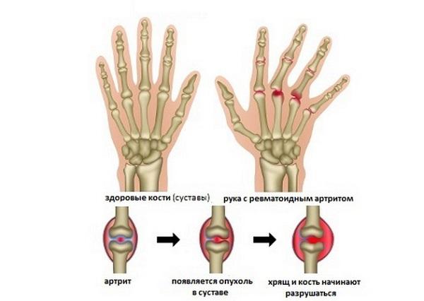 Течение артрита на руке