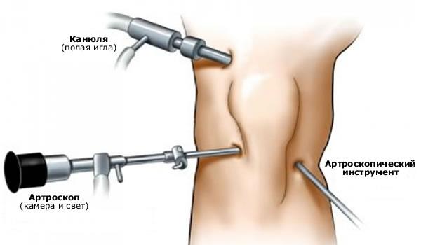 Проведение операции на колене