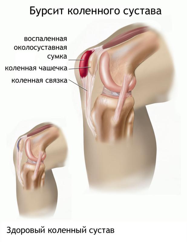 Вид здорового и больного колена