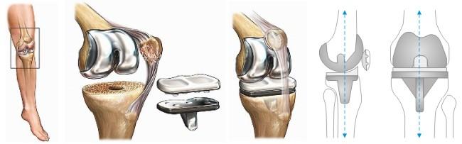 Как выглядит искусственный сустав в колене