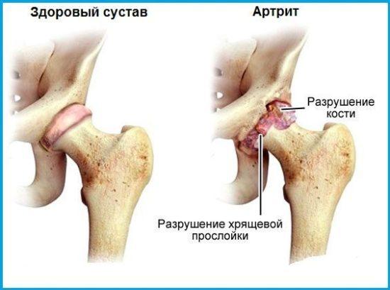 Вид сочленения пораженного артритом