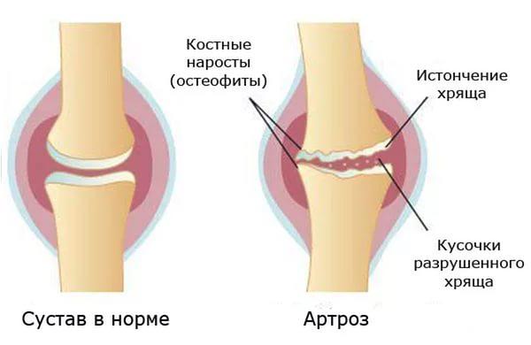 Изменения в костях при недуге