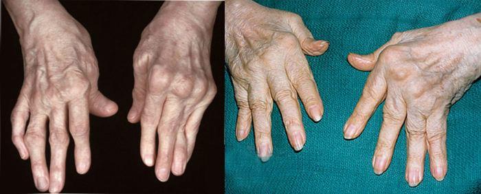 Пораженные недугом руки