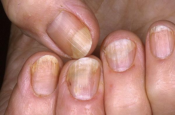 Больные ногтевые пластины