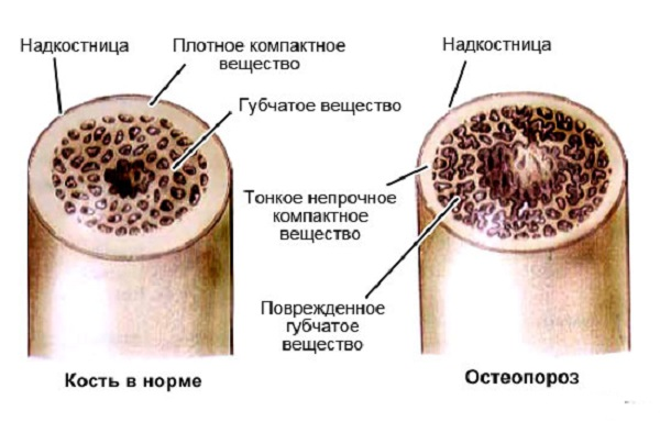 Вид кости в разрезе