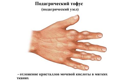 Подагрические тофусы в мягких тканях