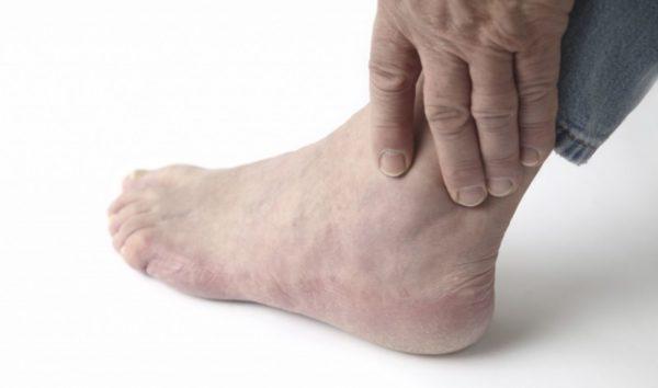 Локализация боли в ноге