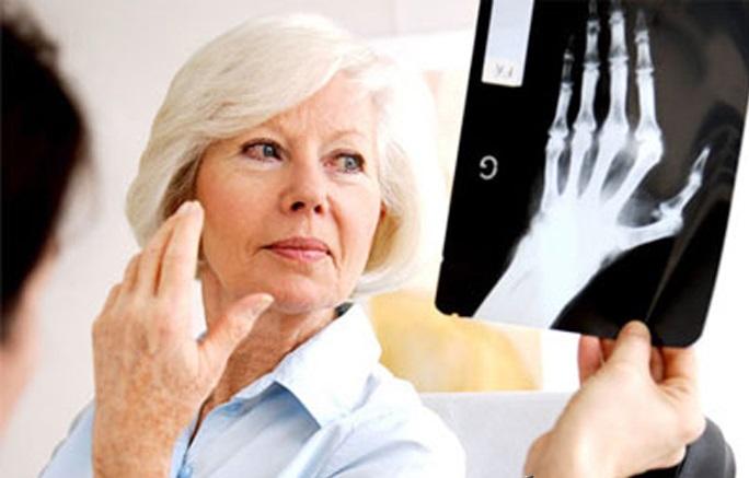 Рентгеновский снимок в руке доктора