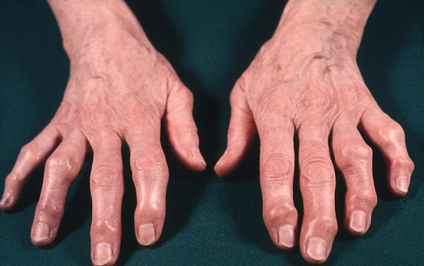 Поражение рук ревматоидным артритом