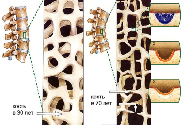 Вид костей в 30 и 70 лет